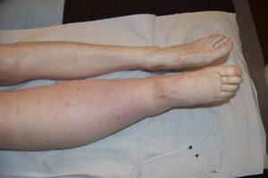 a patients with lymphoedema