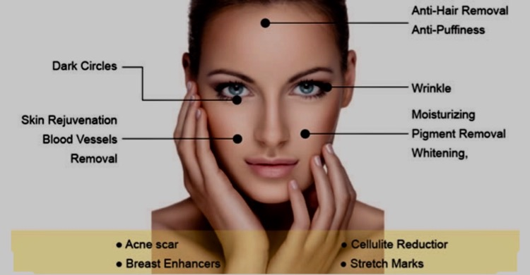 Microneedling: diagram of areas it can help with