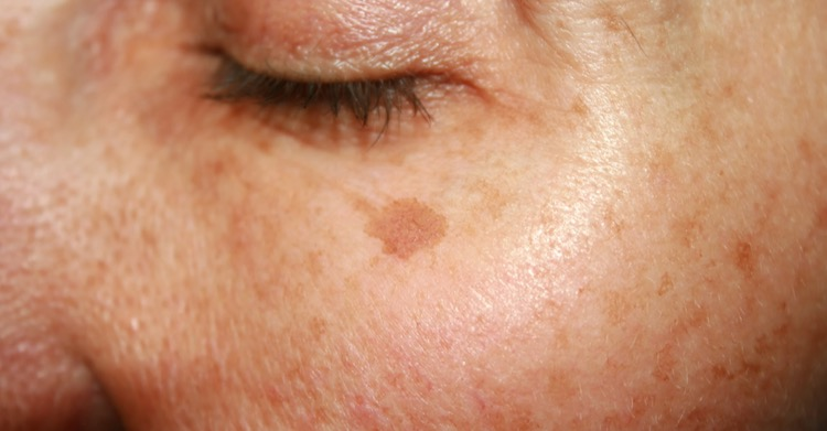 Dark Spots and Discolouration