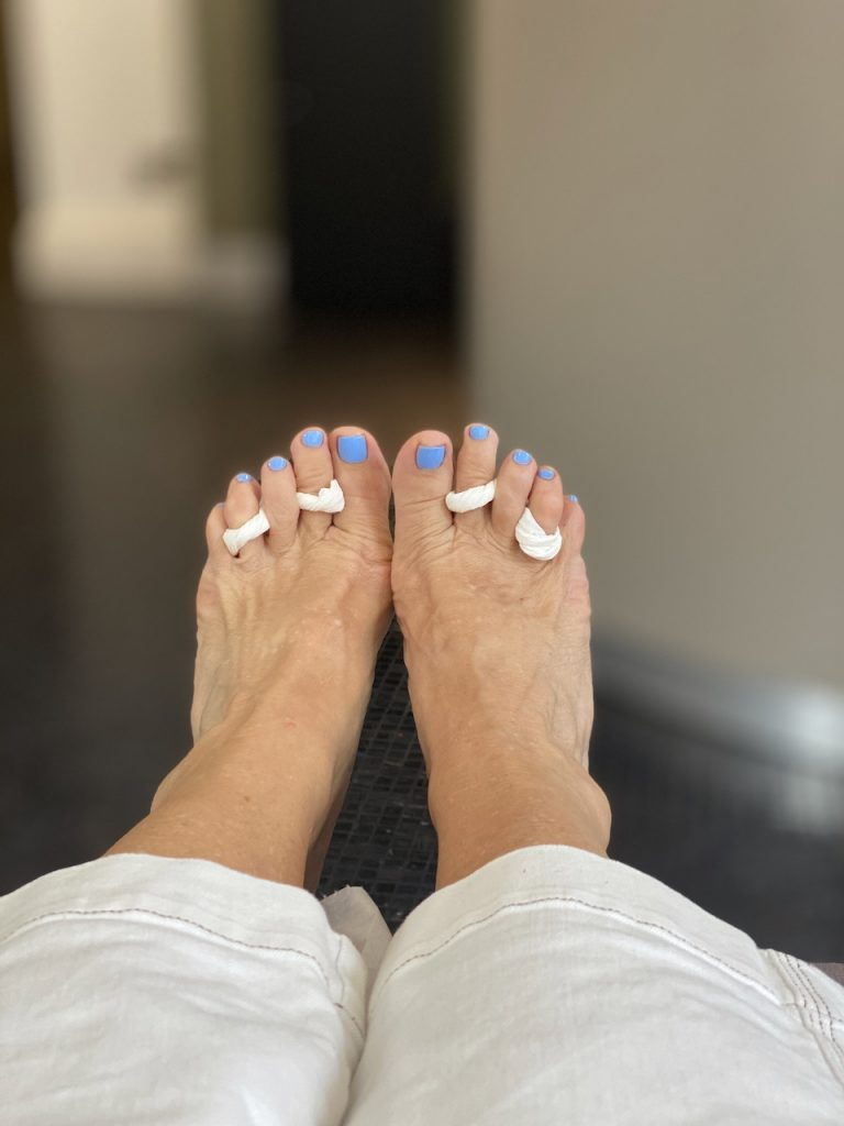 Feet ready for summer sandals after a medical pedicure at Margaret Dabbs