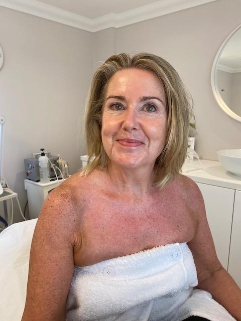 Becky after her bespoke facial by Jade Shelden, Skin Specialist.